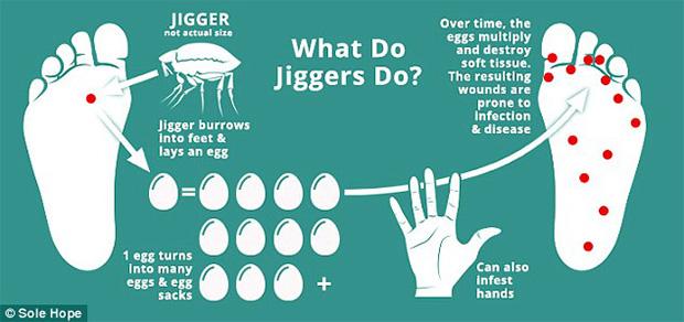 jiggers